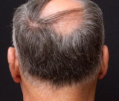 Patient with typical pattern baldness