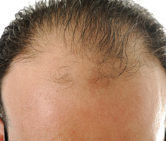 Man showing early signs of alopecia