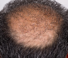 patients scalp showing fue hair transplant