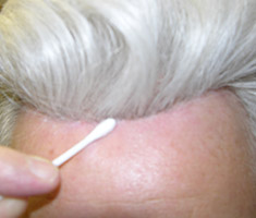 older gentleman showing hair replacement system hairline