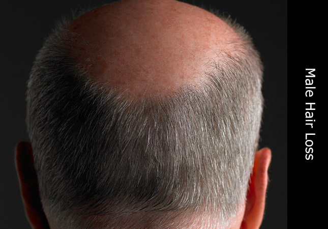 Older man suffering with male pattern baldness