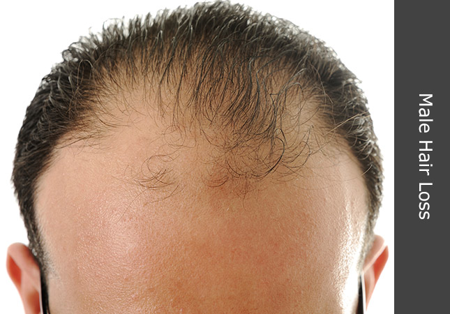 Patient discussing a cure for baldness