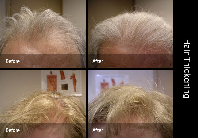 Male and Female before and after hair thickener application