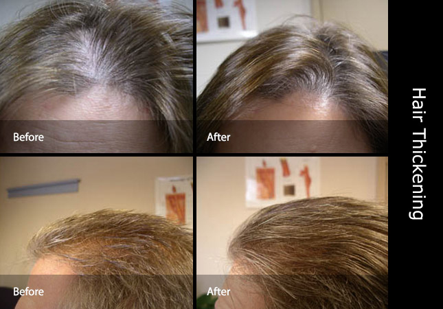 How to thicken hair before and after treatment
