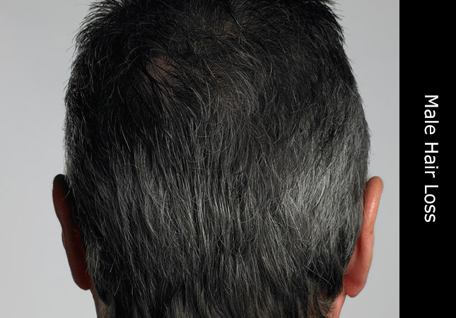 Man seeking help on how to stop hair loss