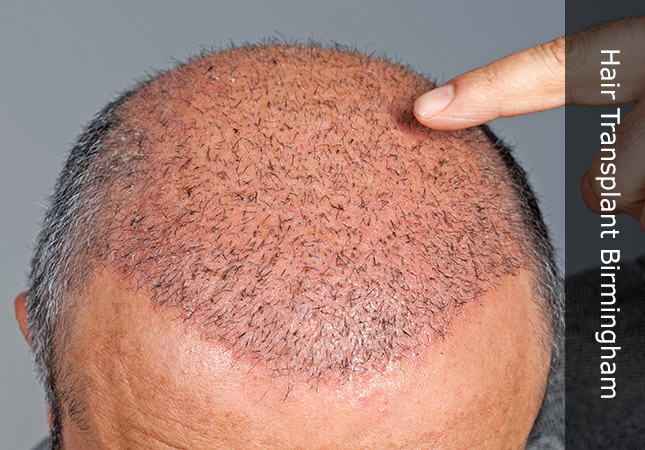 man pointing to new fue hair transplant