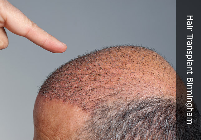 young man with hair regrowth following surgery