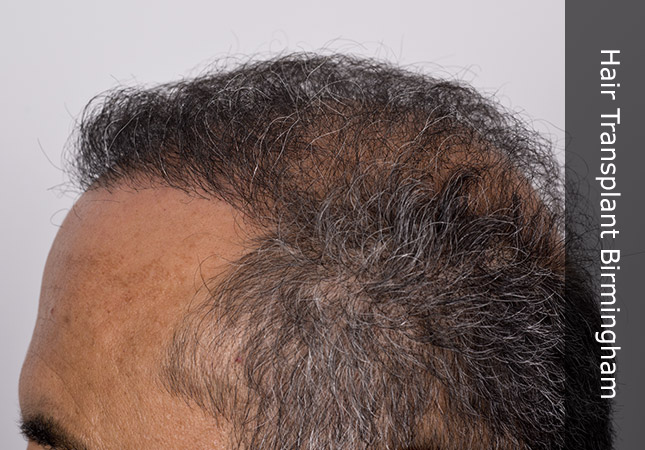 side of mans head showing a successful hair transplant