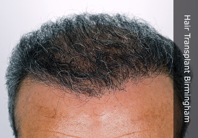 patients forehead showing hair thickening
