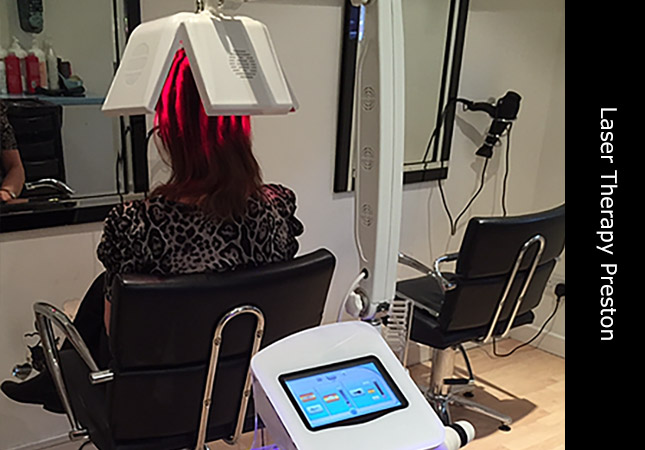 Laser hair growth demonstration in Preston UK using LLLT laser machine