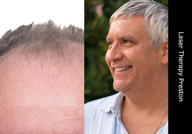 Middle aged man pleased with hair growth laser treatment in Preston UK