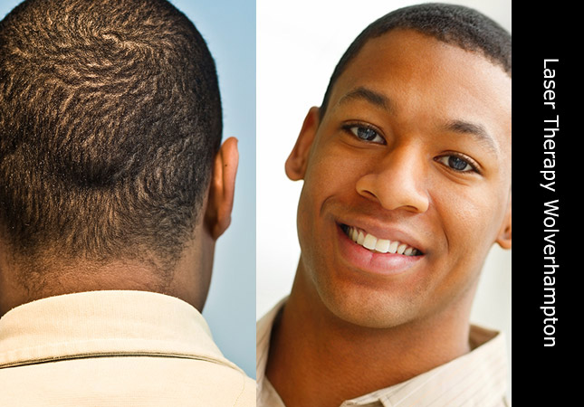 African man being treated with Low Level Laser Therapy for hair loss in Wolverhampton UK