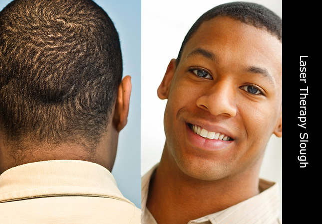 Young African man demonstrating hair growth following laser therapy in Slough