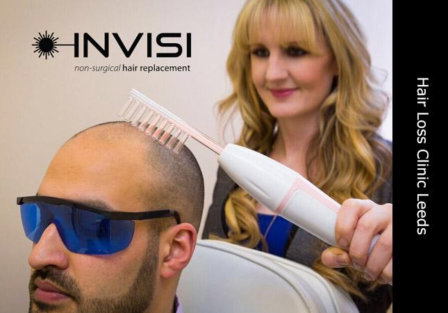 Hair Loss Treatment Leeds Yorkshire