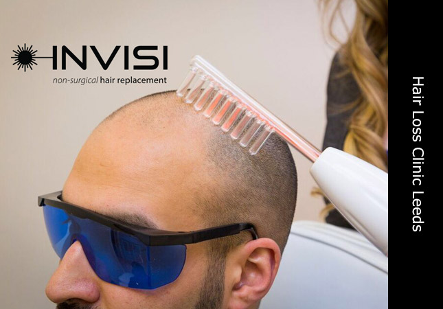 Detailed scalp analysis for hair loss and hair replacement systems based in Yorkshire