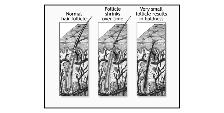 Hair follicles showing how alopecia occurs