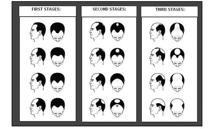 Diagrams To Show The Pattern Of Hair Loss In Male Pattern Baldness