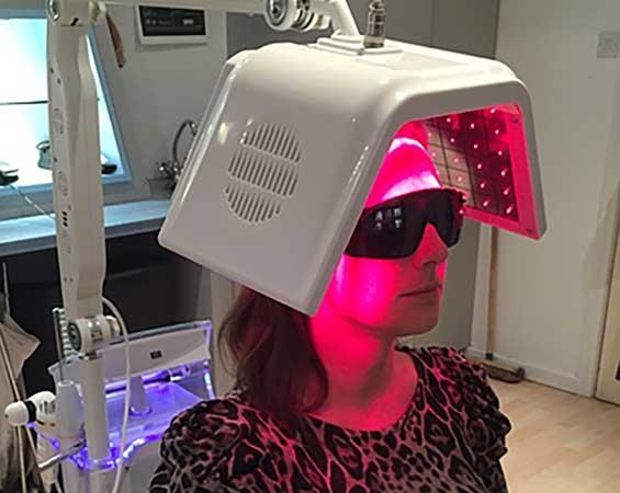 Laser Therapy Preston