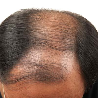 Hair loss root palmetto nettle pygeum saw Do Natural
