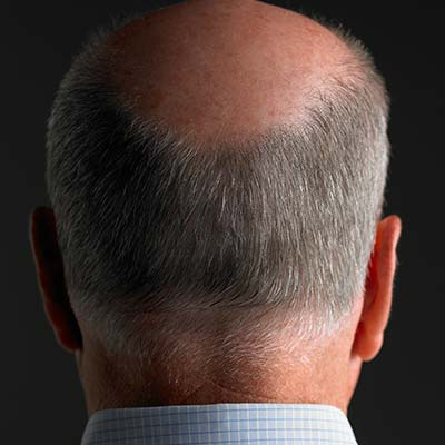 Causes Of Male Pattern Baldness Dht Stem Cell