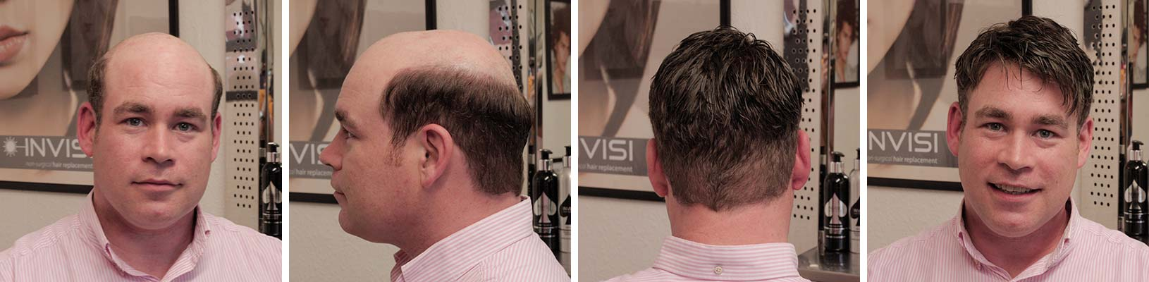 Invisi Before and After Pictures